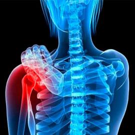https://www.labuniverso.com/wp-content/uploads/2017/02/osteoporosis.jpg